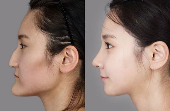 Plastic Surgery Korea Before And After Extreme 1
