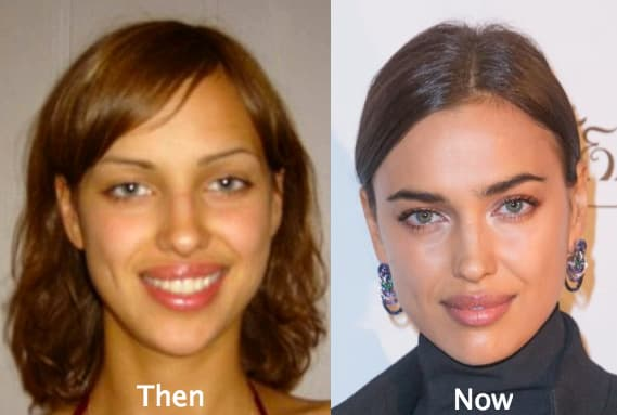 Revision Nose Plastic Surgery Before And After 1