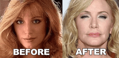 Shannon Tweed Before And After Plastic Surgery 1