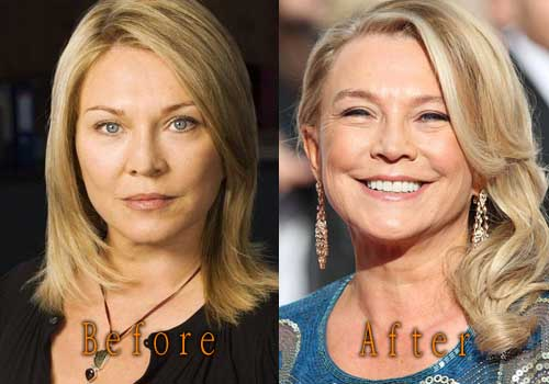 Amanda Redman Plastic Surgery Before And After 1