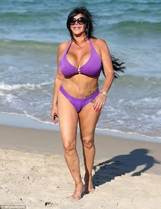 Angela Raiola Plastic Surgery Before And After 1