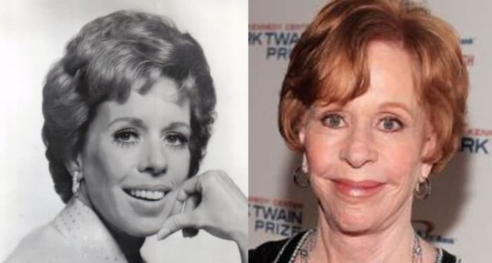 Carol Burnett Before And After Plastic Surgery 1