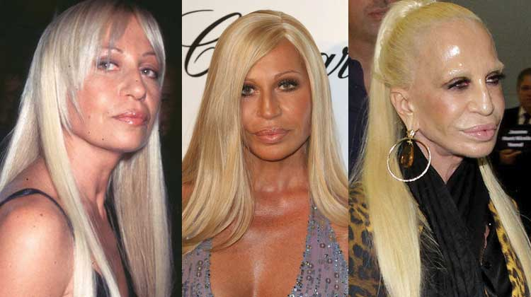 Donatella Versace Before After Plastic Surgery 1