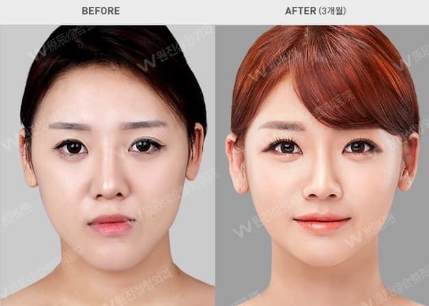 Google Korean Plastic Surgery Before And After 1
