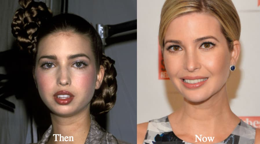Ivanka Trump Nose Plastic Surgery Before After 1