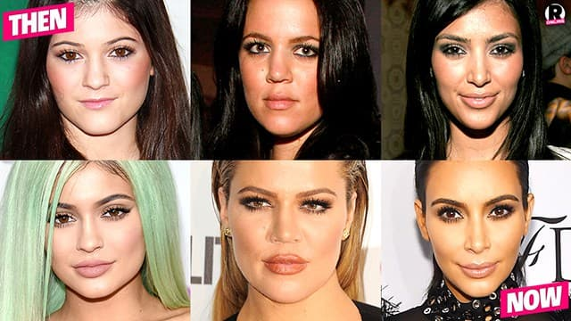 Kardashians And Jenners Before Plastic Surgery 1