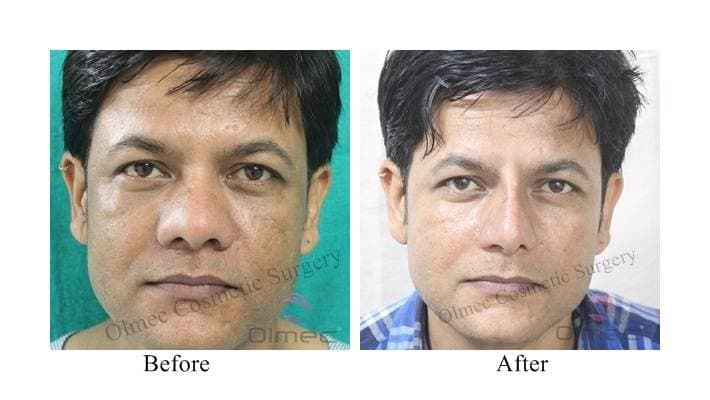 Nose Plastic Surgery Before And After In India 1