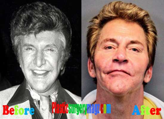 Scott Thorson Before And After Plastic Surgery 1