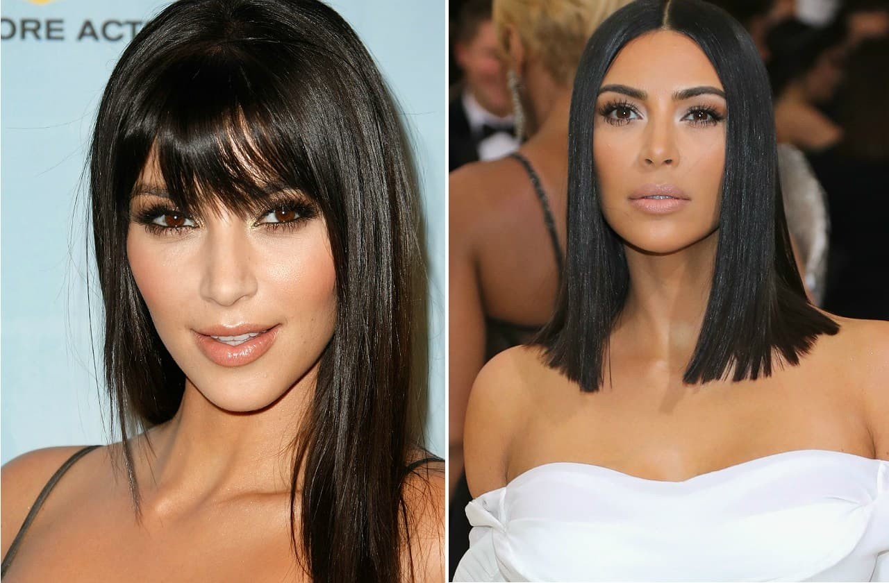 Unbelievable Before And After Plastic Surgery 1