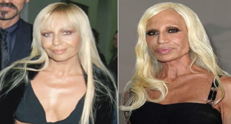 News Anchors Worst Plastic Surgery Before And After photo - 1