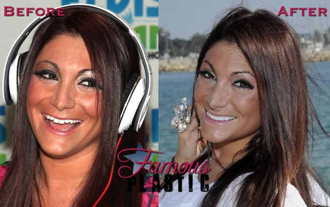 Deena Jersey Shore Plastic Surgery Before And After photo - 1