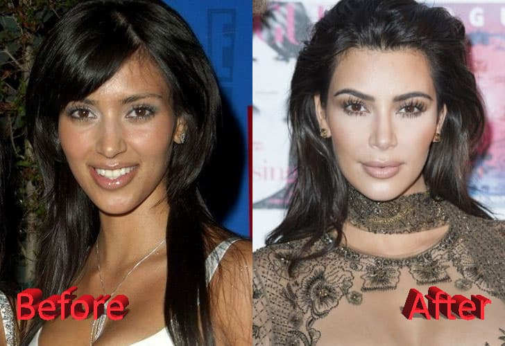 Kim Kardashian Before And After Plastic Surgery 1