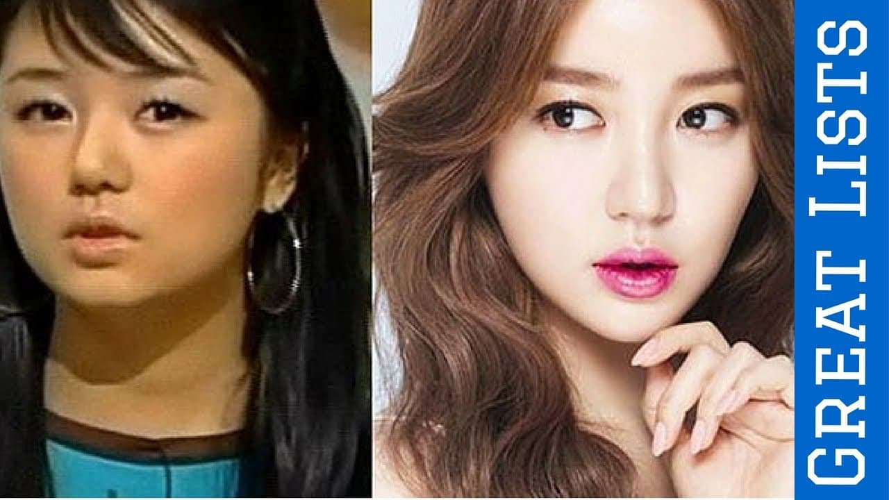 Korean Actress Before And After Plastic Surgery 1
