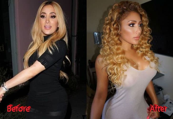 Nikki Mudarris Before And After Plastic Surgery 1