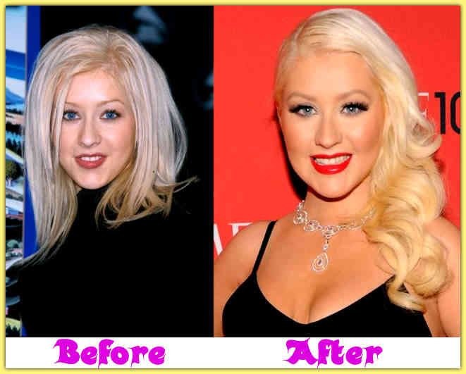 Christina Aguilera Plastic Surgery Before After 1