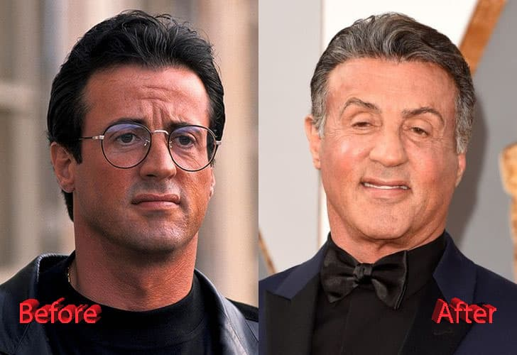 George Michael Plastic Surgery Before And After 1