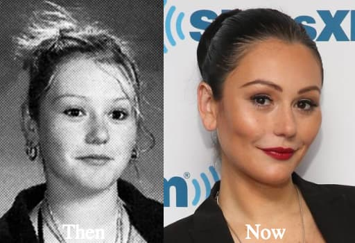 Jwoww Before And After Plastic Surgery Pictures 1