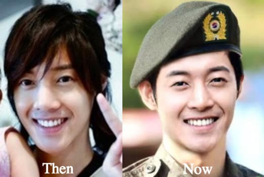 Kim Hyun Joong Plastic Surgery Before And After 1