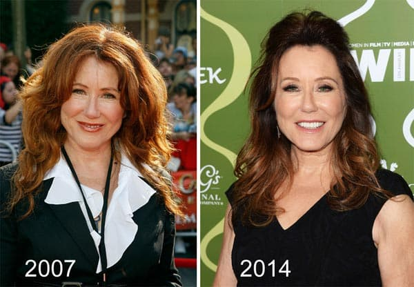 Mary Mcdonnell Plastic Surgery Before And After 1