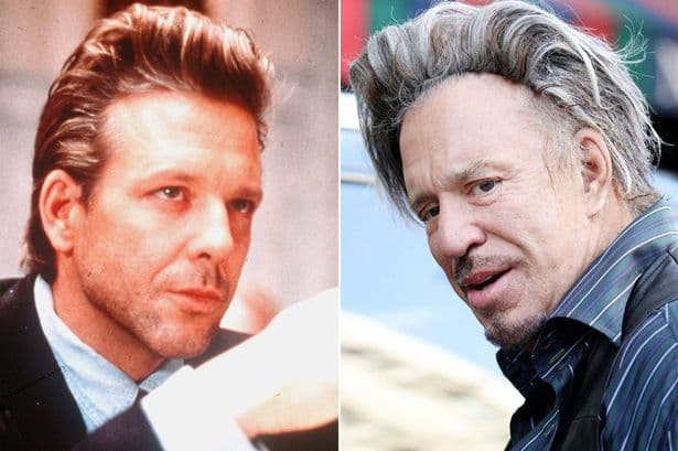 Mickey Rourke Before After Plastic Surgery 2017 1