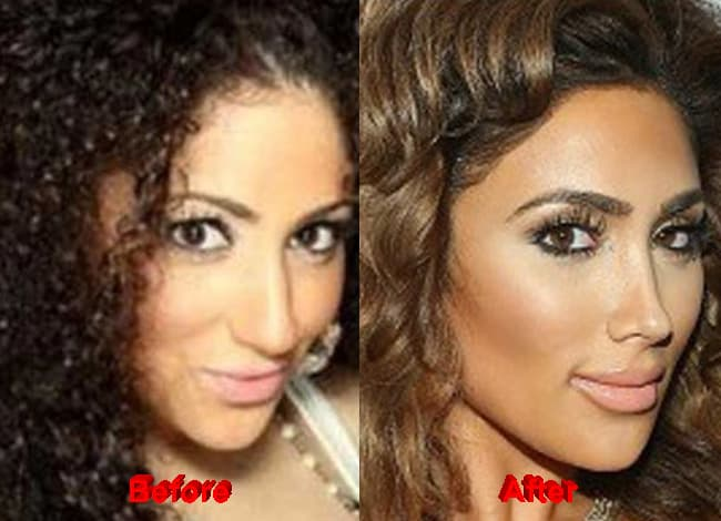 Princess Lhhla Before And After Plastic Surgery 1