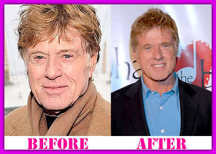 Robert Redford Before And After Plastic Surgery 1