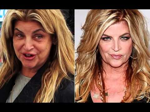 American Hollywood Women Before Plastic Surgery 1