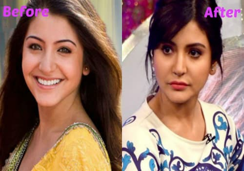 Anushka Sharma Plastic Surgery Before And After 1