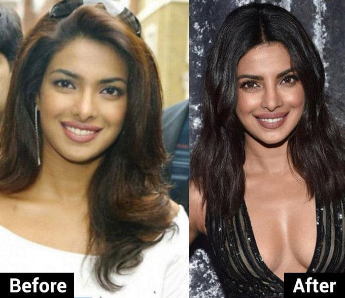 Before And After Pics Of Celebs Plastic Surgery 1