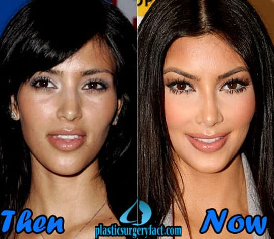 Celebrity Plastic Surgery Before And After 2016 1