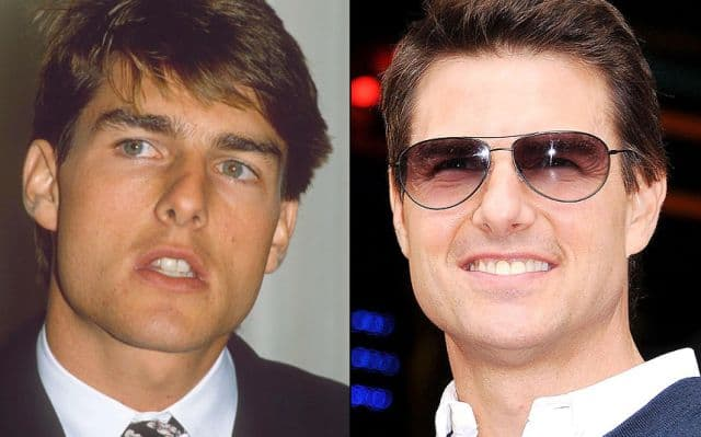 John Barrowman Plastic Surgery Before And After 1