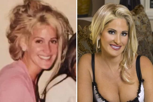 Kim From Real Housewives Before Plastic Surgery 1