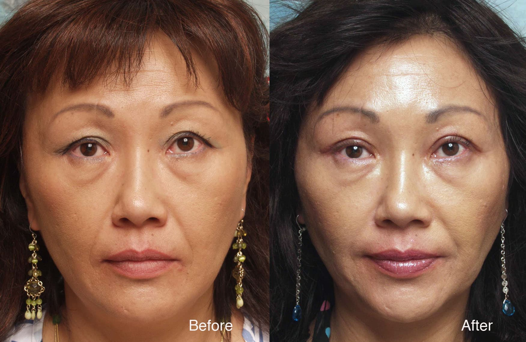 Korean Plastic Surgery Before After Double Lid 1