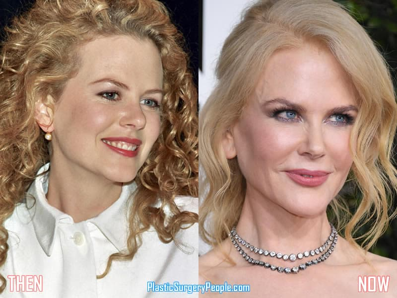 Nicole Kidman Plastic Surgery Before After Pics 1