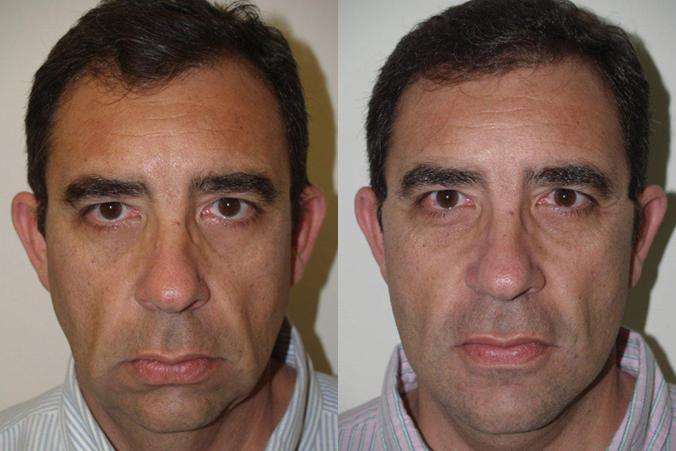 Plastic Surgery Face Sucessful Before And After 1