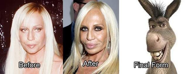 Stars Before And After Plastic Surgery Failures 1