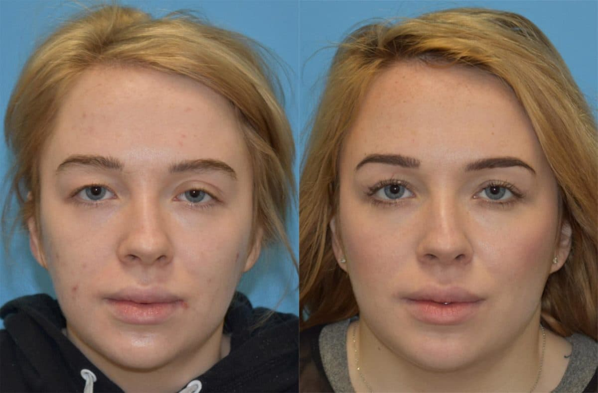 Blepharoplasty Plastic Surgery Before And After 1