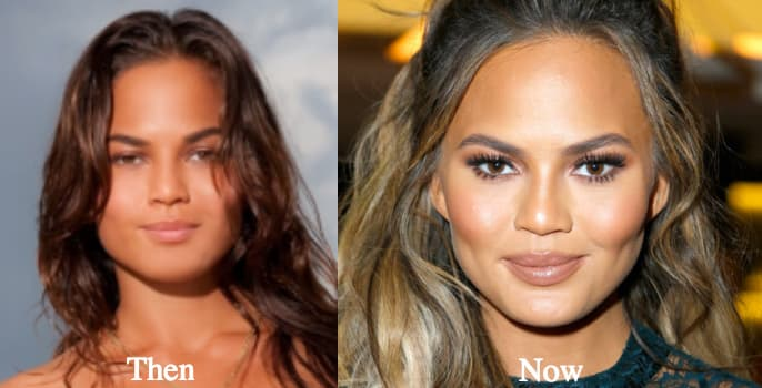Chrissy Tiegen Before And After Plastic Surgery 1