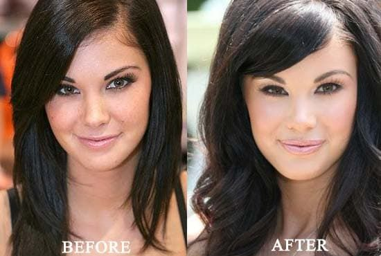 Jade The Hills Plastic Surgery Before And After 1
