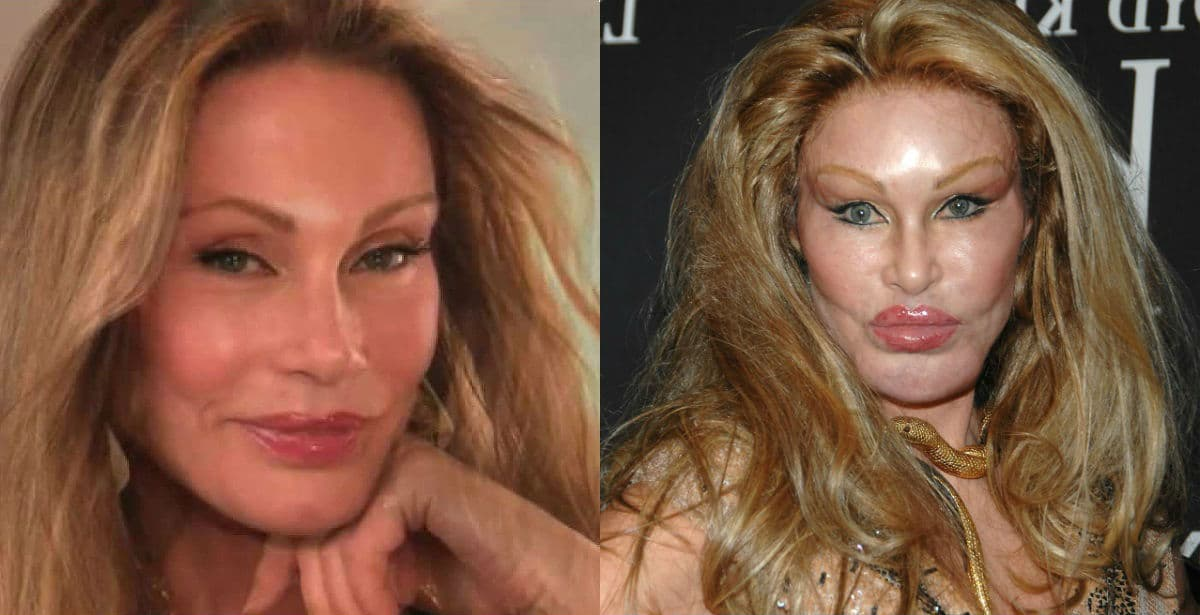 Jennifer Lopez Plastic Surgery Before And After 1