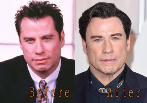 John Travollta Plastic Surgery Before And After 1
