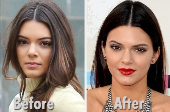 Kom Kardashian Before And After Plastic Surgery 1