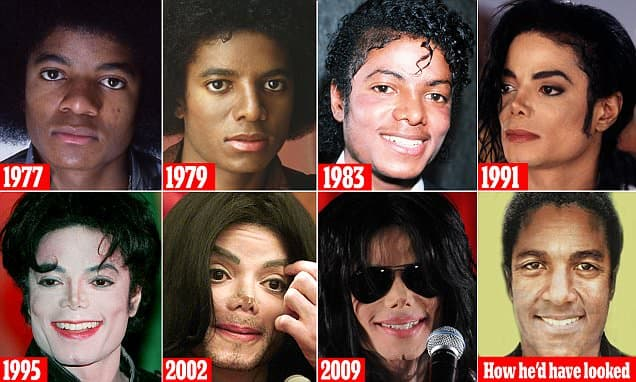 Michael Jackso Before Plastic Surgery And After 1