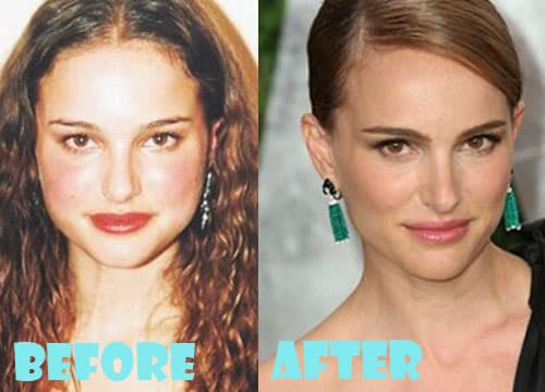 Natalia Oreiro Before And After Plastic Surgery 1