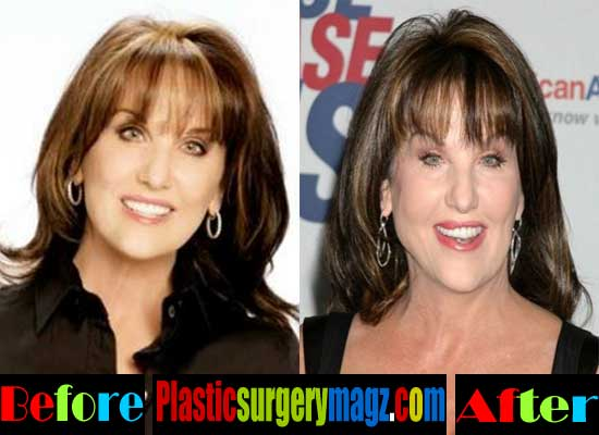 Pictures Of Robin Mcgraw Before Plastic Surgery 1