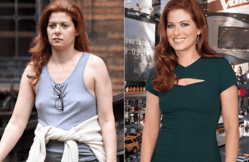 Tv Shows With Before And After Plastic Surgery 1