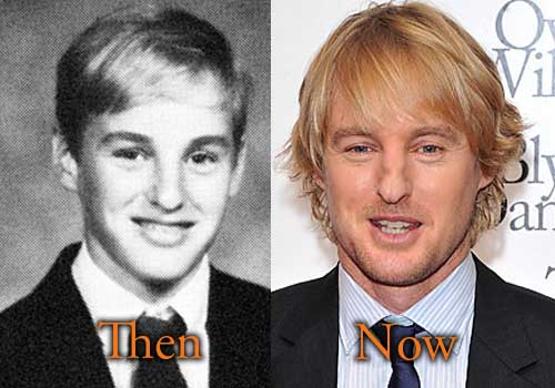 Matthew Mcconaughey Plastic Surgery Before And After photo - 1