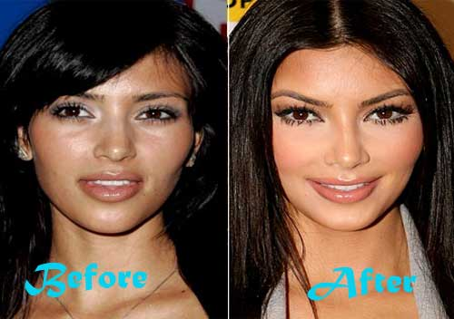 Kim Kardashian Before And After Butt Plastic Surgery photo - 1