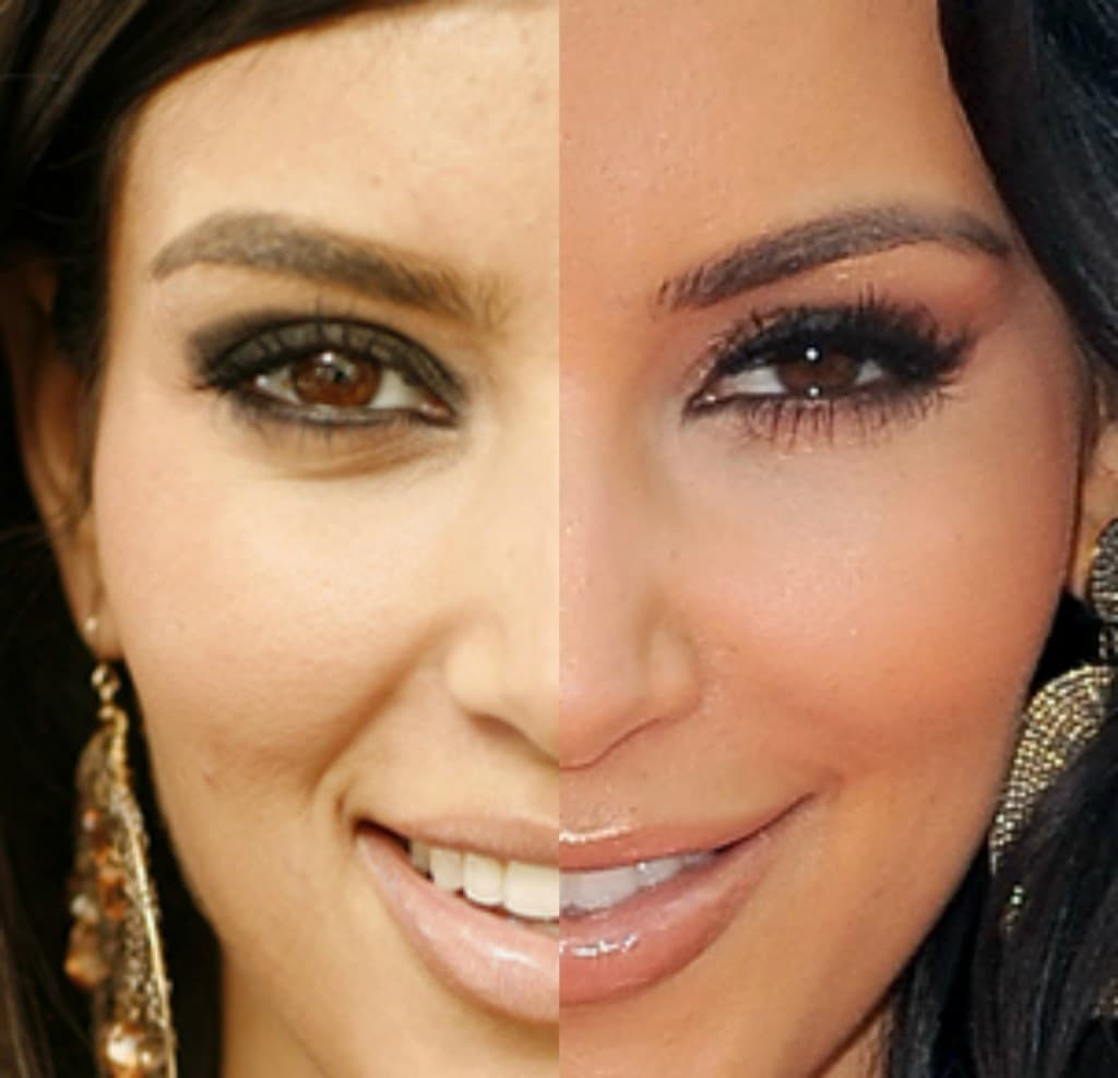 Kim Kardashian Before After Plastic Surgery Face 1