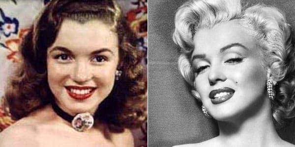 Hollywood Stars Before And After Plastic Surgery 1
